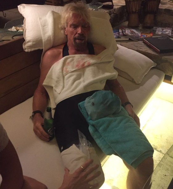 Pic shows: Richard Branson injuries after a bicycle accident My life flashed before my eyes Comment...  A couple of nights ago I went cycling on Virgin Gorda with Holly and Sam as part of my training for the Virgin Strive Challenge. I was heading down a hill towards Leverick Bay when it suddenly got really dark and I managed to hit a 'sleeping policeman' hump in the road head on. The next thing I knew, I was being hurled over the handlebars and my life was literally flashing before my eyes.